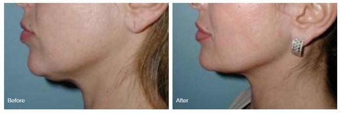 Liposculpture before and after photo